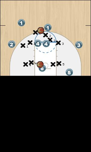 Basketball Play stretch 1 Zone Play
