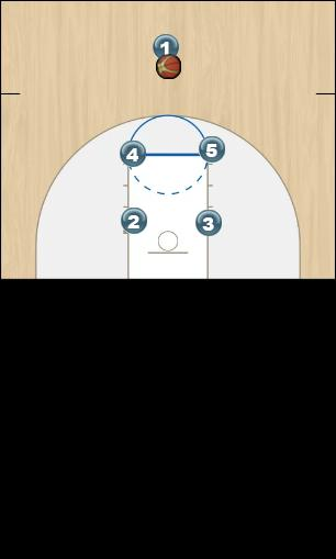 Basketball Play High Post Hit Uncategorized Plays offense, man, set, ucla