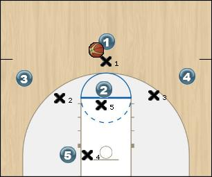 Basketball Play Arizona foul line Zone Play