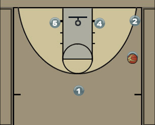 Man Set with 2 Stagger Screens Diagram